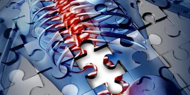 Остеопороз – это цинга костей, а не дефицит кальция