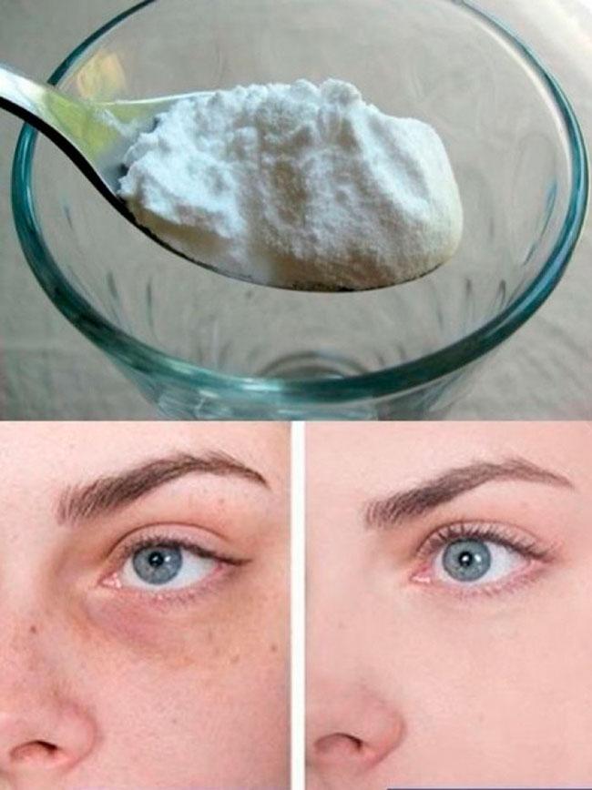 Сода справится с синяками под глазами