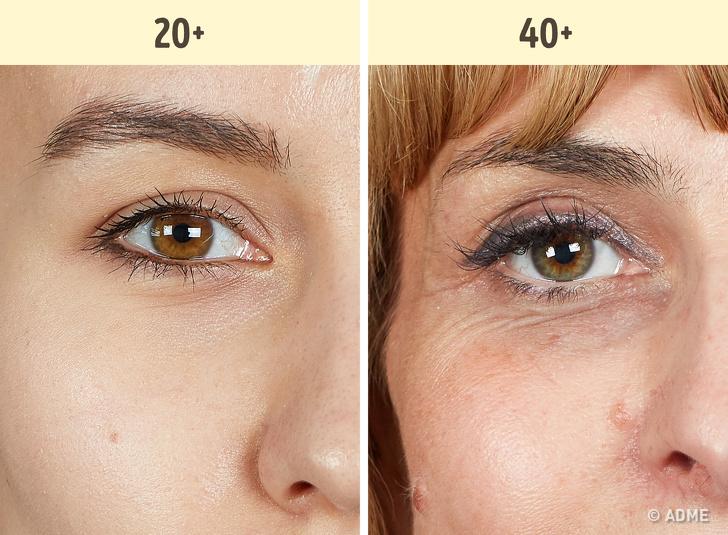 Мешки иморщины вокруг глаз