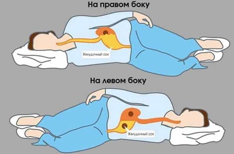 Не спите на правом боку.Мануальный терапевт предупреждает!