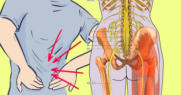 Попрощайтесь с болью в спине! Достижение успеха в 95 % случаев!