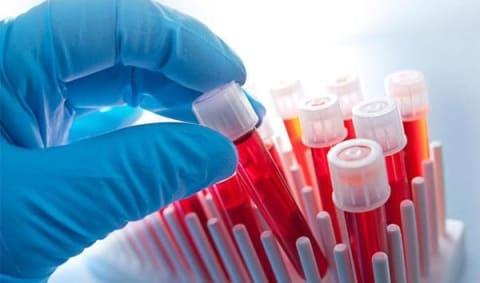 9 показателей крови, которые расскажут о вас всё!