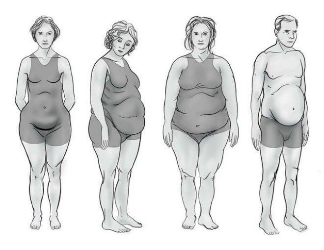 Существует 4 основных типа фигуры в зависимости от гормонального нарушения