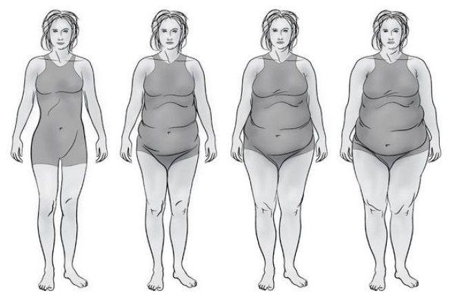 Щитовидный тип фигуры