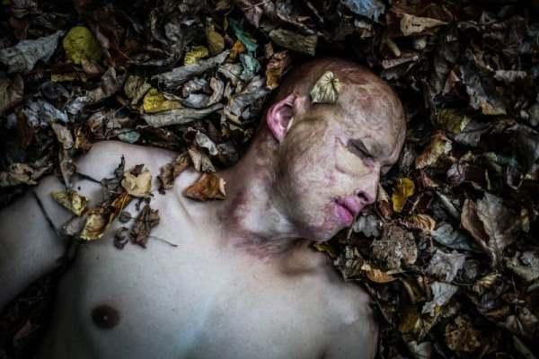 «Я сгорел и переродился»: история мальчика, брошенного в печь отцом