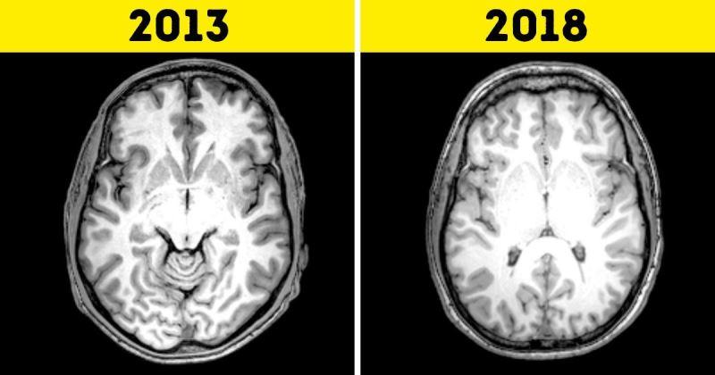 Нейробиолог рассказал, как можно омолодить свой мозг с помощью 9 привычек